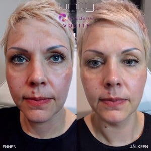 Unity Tampere Juvederm Volite Before After